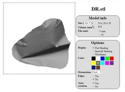 Figure 1: Optical scan (EinScan-Pro Scan, 3D Systems) of right orbital implant in stereolithographic (STL) data