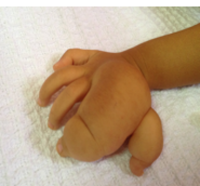 Figure 1: Photograph showing sausage like swelling to patient ring and little finger