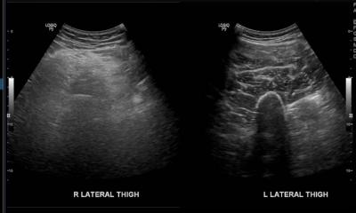 Figure 1: Ultrasound comparing the right and left thigh. Ultrasound showed muscles at lateral aspect of right thigh are heterogeneously hyperechoic. No collection seen at subcutaneous tissue or intramuscularly.