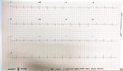 Patient's ECG on arrival showed sinus tachycardia