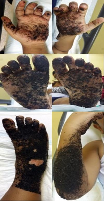 Figure 1: Initial presentation of severe tar burn injuries